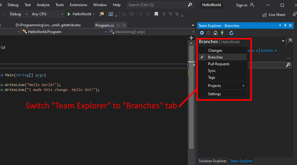 "Visual Studio UI showing how to switch to Git ""branches"" view."